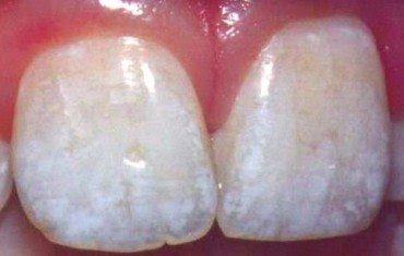 Răng nhiễm màu khắc phục như thế nào?