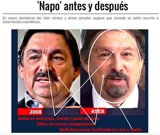 """""""NAPO"""" Napoleon Gomez Urrutia, antes y después.... Screen%2BShot%2B2018-08-30%2Bat%2B05.35.07"""