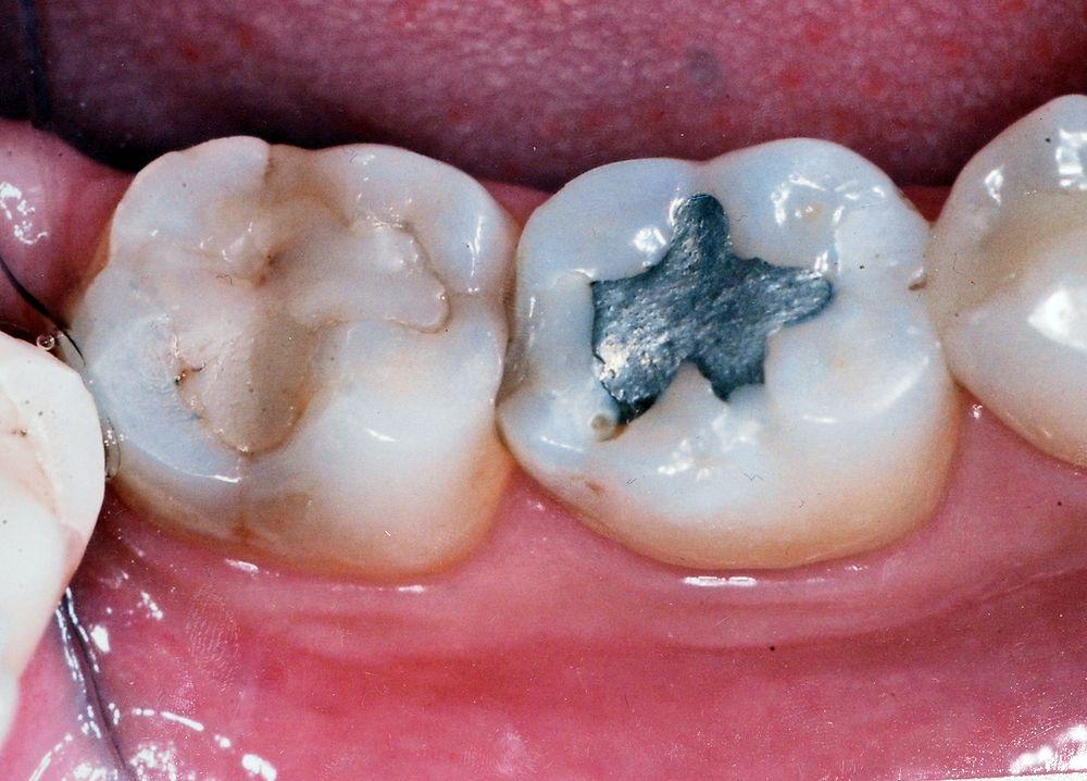 Restaurações Dentárias