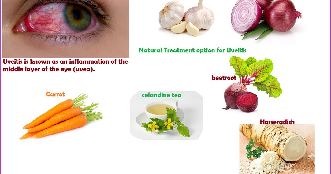 Cataracts Treatment Naturally