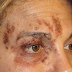 Did You Know Disease Shingles?