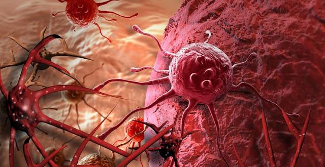 طبيب يُفجر مفاجأة: عالجوا السرطان بالماء وهذا المكون الموجود في منازلنا جميع كثير من مرضاه تم شفائهم بهذا العلاج