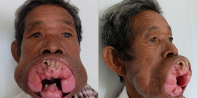 Selama 30 Tahun, Mulut Pria Ini Dipenuhi Daging Tumbuh, dan Seorang Dokter Berhasil Mengoperasinya