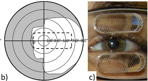 図:同名半盲とプリズムメガネ