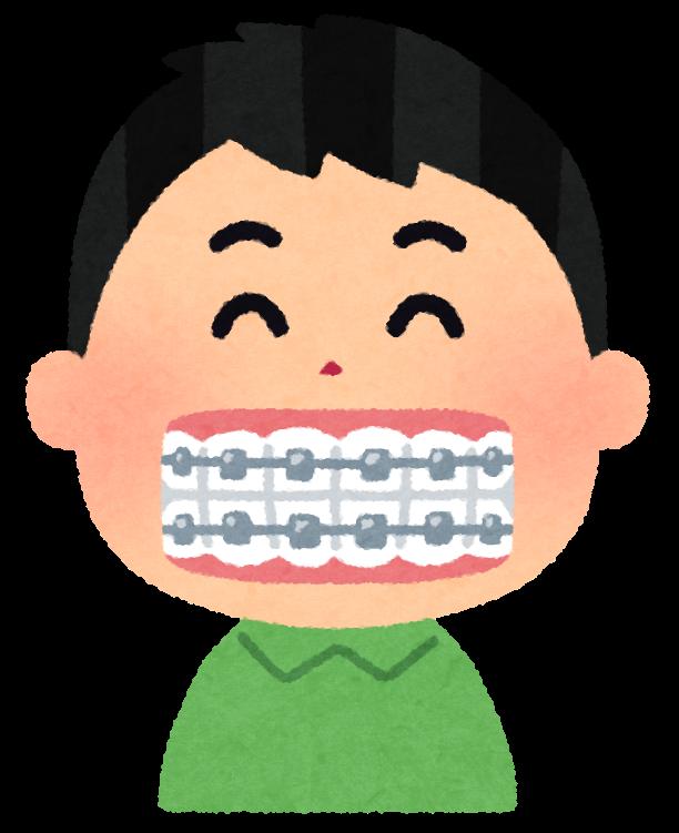 歯の矯正のイラスト | かわいいフリー素材集 いらすとや
