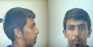 Θεσσαλονίκη: Αυτός είναι ο Αφγανός που χτύπησε και ασέλγησε σε ανήλικο