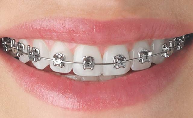 Orthodontic treatment with braces image