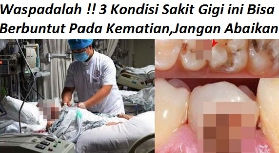 3 Kondisi Sakit Gigi Yang Tidak Boleh Kamu Tahan