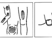 Cara Injeksi Yang Tepat dan Benar