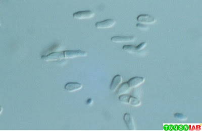 Microscopic structures of Phaeoannellomyces werneckii, showing characteristic budding annelloconidia. P. werneckii causes tinea nigra.