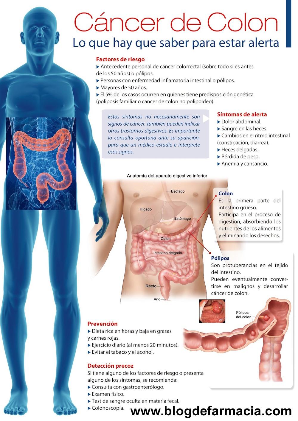 cancer de colon no polipos