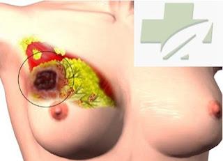 cara mengobati kanker payudara stadium 1, obat ramuan penyakit kanker payudara, kanker payudara gejala awal, klinik pengobatan kanker payudara, obat luar untuk kanker payudara, kanker payudara dan obat nya, foto kanker payudara stadium 4, garcia obat kanker payudara, obat medis kanker payudara, kanker payudara stadium 4 lanjut, obat herbal mujarab kanker payudara, mengobati kanker payudara secara tradisional, obat penyakit kanker payudara alami, obat tradisional kanker payudara stadium 4, harapan hidup kanker payudara stadium 4, cara pengobatan kanker payudara secara herbal, mengobati kanker payudarah, tumbuhan obat kanker payudara, obat kanker payudara stadium empat, kanker payudara artis, efek samping pengobatan kanker payudara, kanker payudara parah, pengobatan kanker payudara tangerang, ramuan herbal mencegah kanker payudara, obat herbal buat kanker payudara, obat tradisional kanker payudara stadium lanjut, obat herbal untuk sakit kanker payudara