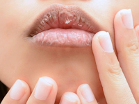 Cara Mudah Mengobati Bibir Pecah-pecah