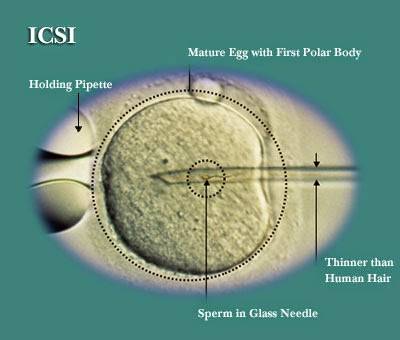 http://www.mannatfertility.com/intra-cytoplasmic-sperm-injection-icsi/