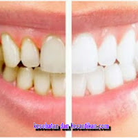 Cara alami menghilangkan karang pada gigi