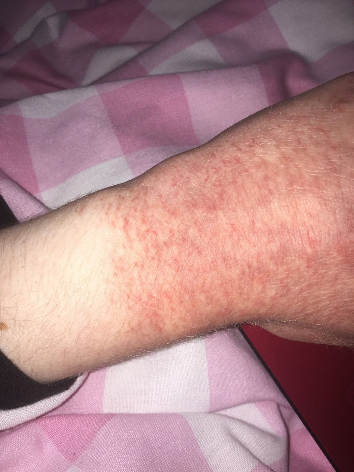 What's It's Like Living With Emetophobia (A Fear Of Being Sick) OCD hands over washed sore red cracked