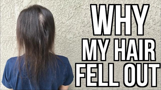 control hair fall,stop hair fall,main mistakes of hair loss