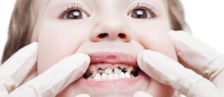 Common Diseases of Child dental patient