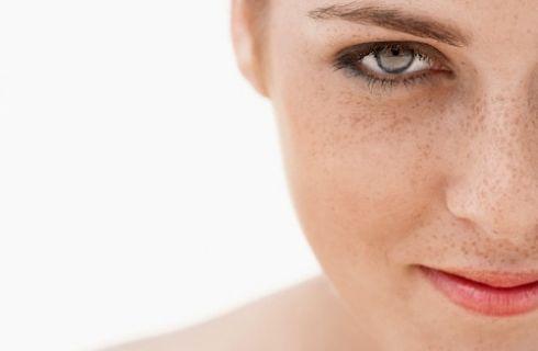 gel di aloe, macchie scure della pelle, rimedi naturali per le macchie scure della pelle