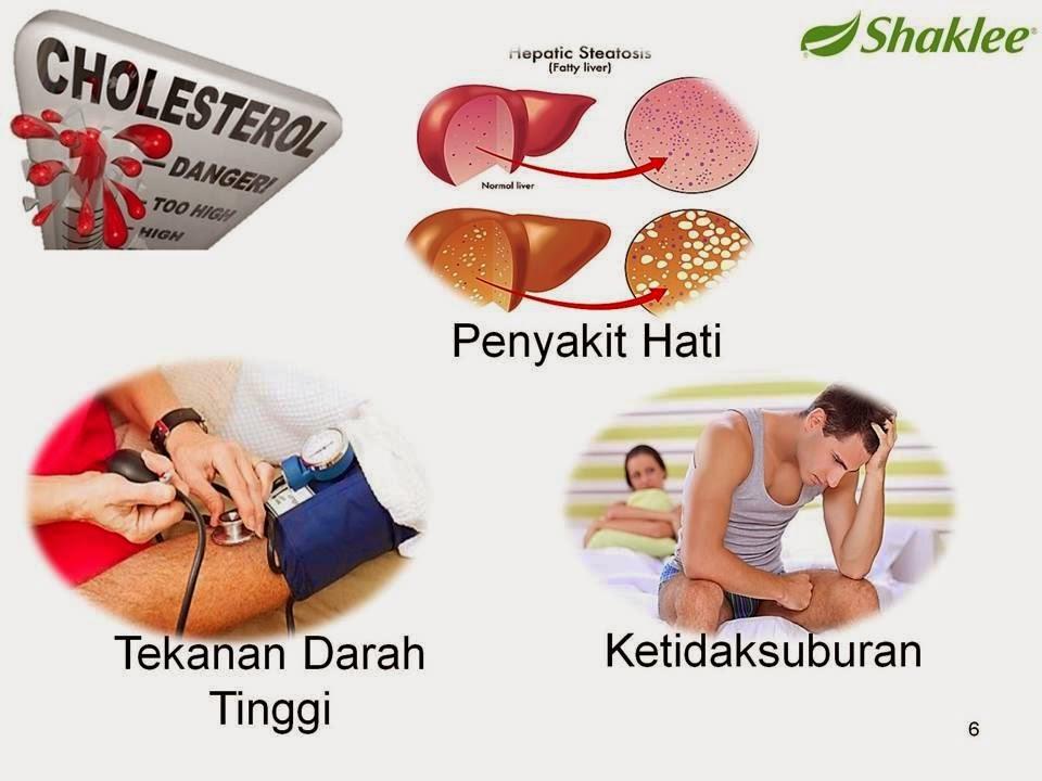 kolesterol, fitosterol, phytocol, pengedar shaklee melaka, HDL, LDL triglyceride, paras kolesterol