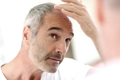 Tratamientos para la perdida de cabello
