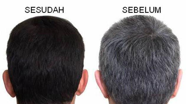 Inilah Cara Ampuh untuk Menghilangkan Rambut Beruban