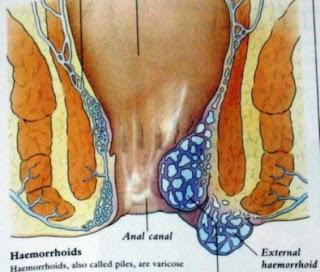 cara menyembuhkan ambeien tanpa operasi