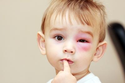 4 Gejala Awal Ginjal Bocor pada Anak