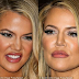 Khloe Kadarshian finally admits facial fillers wrecked her face