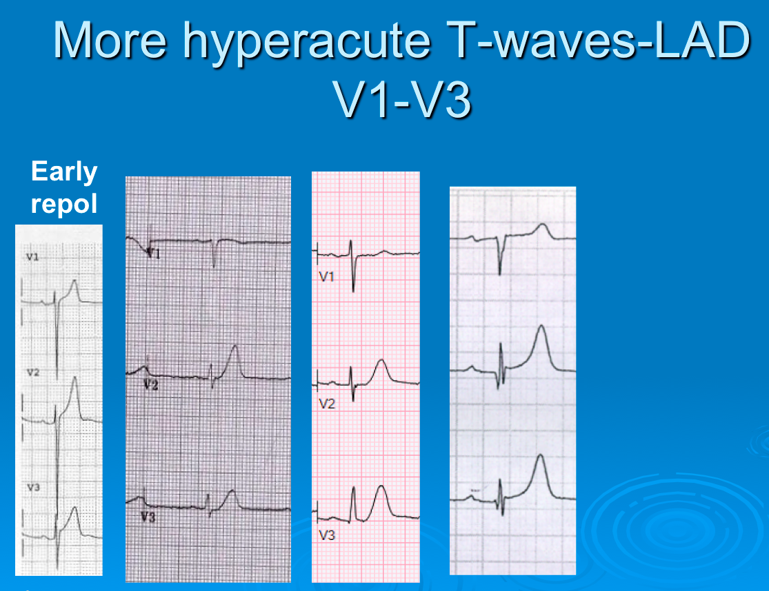 Dr  Smith's ECG Blog: Large T-waves and a Computer