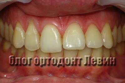 Обращение за повторным ортодонтическим  лечением