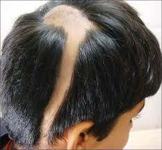 alopecia : Questions and Answers