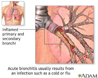 Obat Bronchitis Paling Aman danTerpercaya