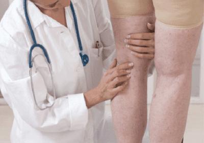Pengobatan Penyakit Amiloidosis Secara Alami