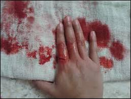 Ramuan Obat Untuk Luka Berdarah