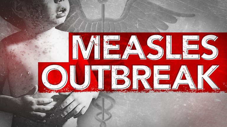 measles, philippines
