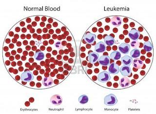 Hasil gambar untuk gambar penyakit leukemia mieloblastik