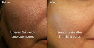 It conditions your skin and tightens open skin pores