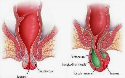 Obat wasir Herbal Untuk Wanita Hamil