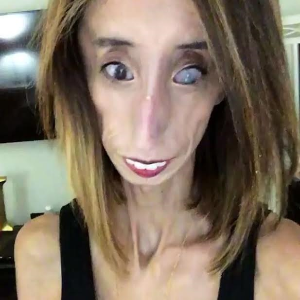 """The World's Ugliest Woman"" Lizzie Velasquez is fighting ...