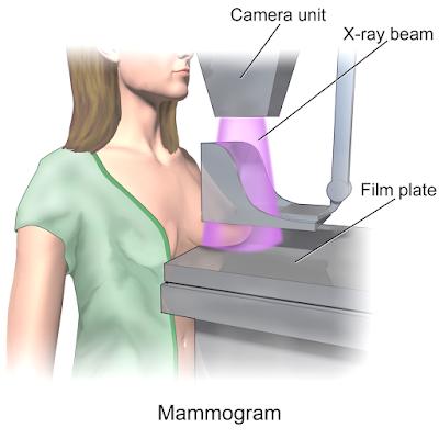A mammogram