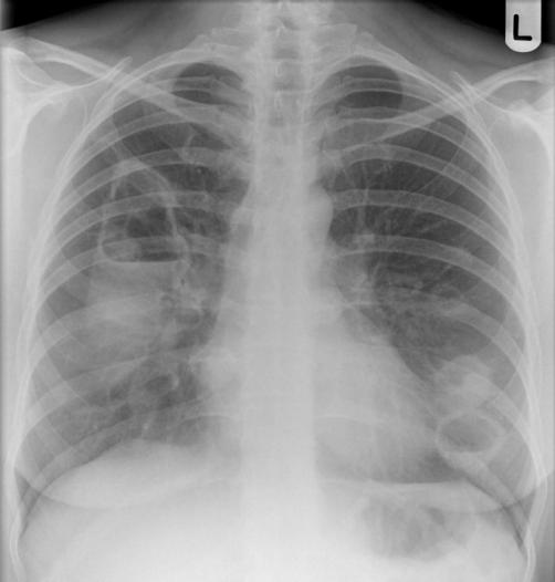 interprétez cette radiographie du thorax quel est votre diagnostic