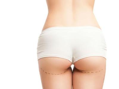 La chirurgie brésilienne des fesses pourrait mettre votre santé en danger