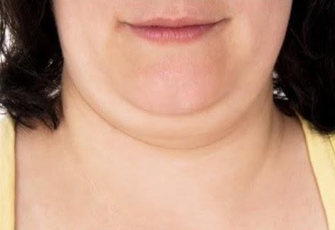 Tips dan Cara Menghilangkan Lemak Dibawah Dagu dan Leher Secara Mudah
