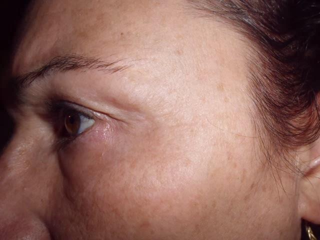 piel seca antes del exfoliante
