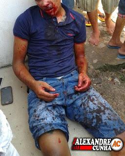 URGENTE! Assaltante é Baleado na boca durante tentativa de assalto ao posto SP, em Chapadinha