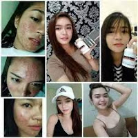 Luxxe White Enhanced Glutathione user 2