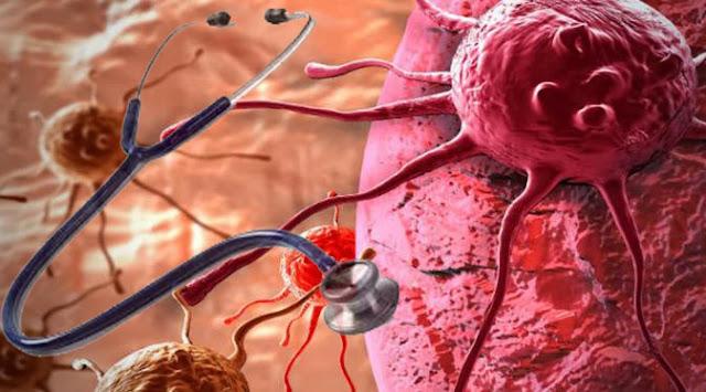 Apa Itu Biopsi Cair ? Diagnosa Kanker Masa Depan Tanpa Perlu Pembedahan