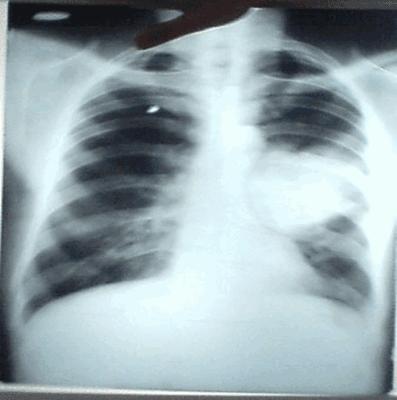 Cliché Thoracique iNterprété 08 | Cancer bronchique proximal