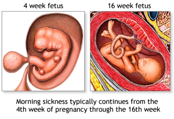 Morning Sickness can begin between 4 and 8 weeks of pregnancy